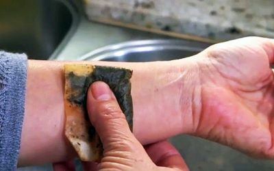 This Lady Puts A Used Tea Bag On Her Wrist. It Seemed Weird But The Reason Is Brilliant!