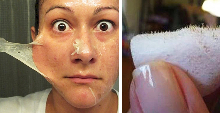 does gelatin and milk get rid of blackheads