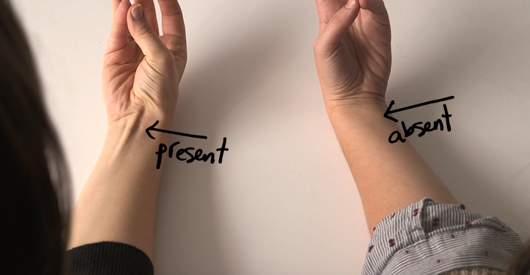 Does Your Tendon Protrude Out Of Your Wrist Like That If It Does