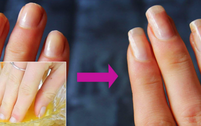 This Popular Ingredient That's Already In Your Cabinet Will Grow and Strengthen Your Nails Fast.