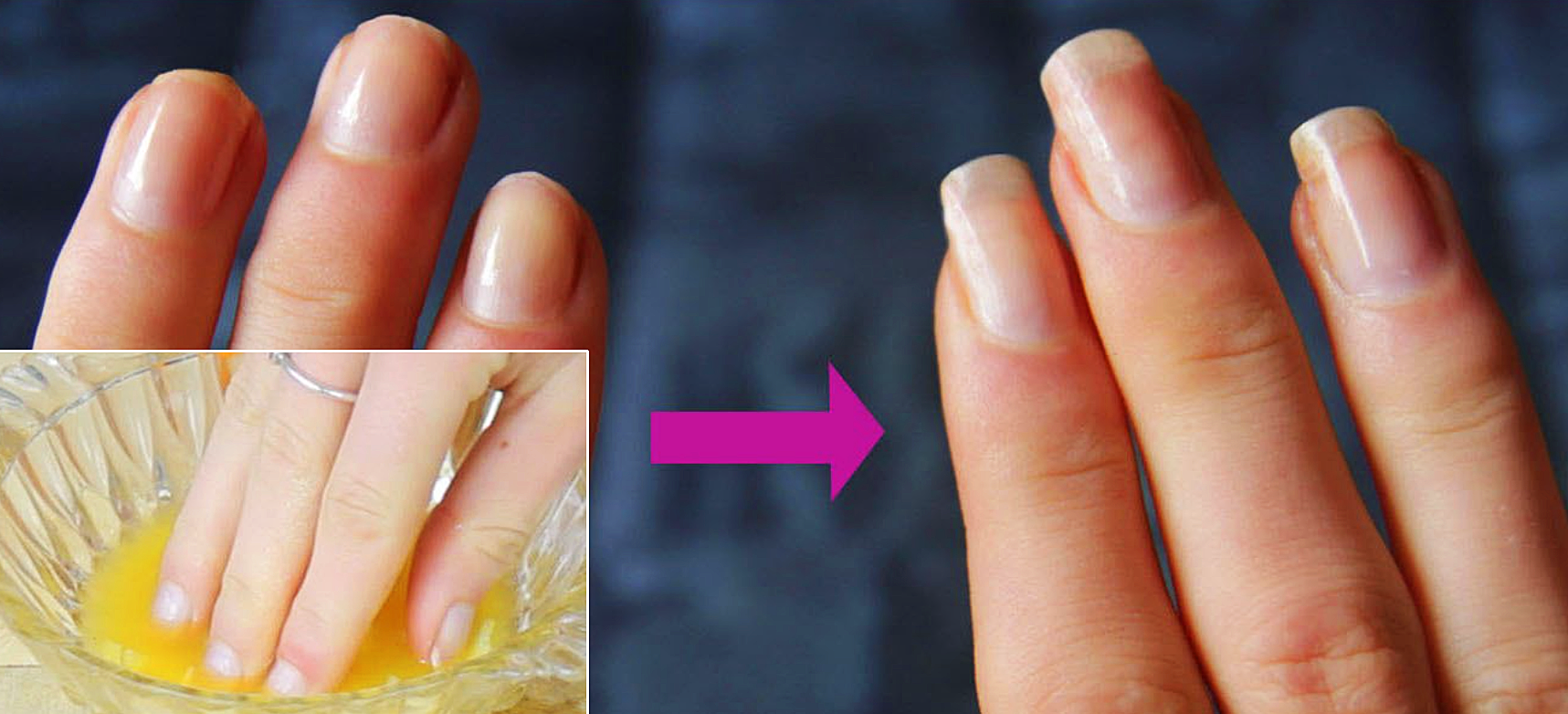 How to strengthen the nails