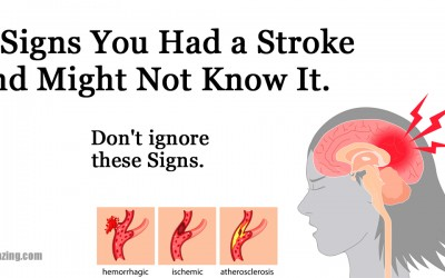 8 Signs You Had a Stroke and Might Not Know It. Don't Ignore These Signs.