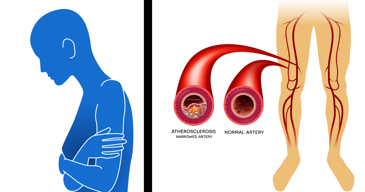 8 Signs And Symptoms You Have Poor Circulation And Peripheral Artery