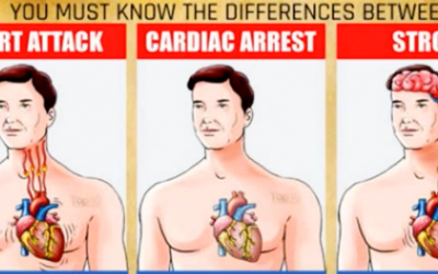 How To Tell If You Are Having a Stroke, Cardiac Arrest or a Heart Attack.