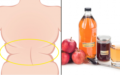 The Health Benefits Of Consuming Apple Cider Vinegar And Honey In The A.M. On An Empty Stomach