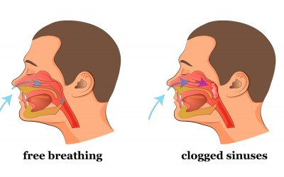 Do You Have a Stuffed Nose Or Clogged Sinuses? This Simple Trick Will Clear It In a Few Seconds.