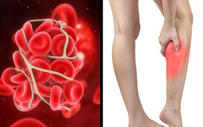 Signs and Symptoms You Have a Blood Clot and Might Not Even Know It