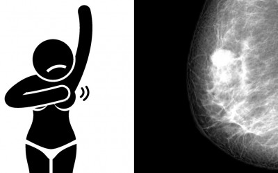 Signs and Symptoms You Have Breast Cancer and May Not Even Know It.