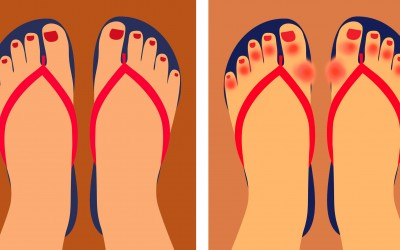 6 Reasons Doctors Are Now Warning People To Never Wear Flip Flops Again.