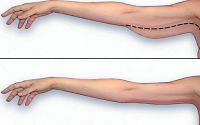 These Are The Best Ways To Lose That Annoying Arm Fat While You Are At Home!