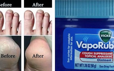 Apparently I've Been Using Vicks VapoRub Wrong This Whole Time. Here Are 7 Surprising Uses!
