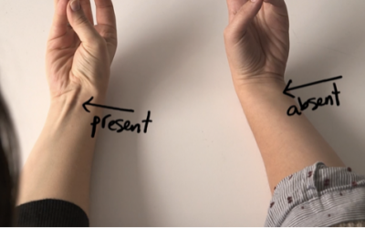 This Is The Strange Reason Your Tendon Protrudes Out Of Your Wrist Like That.