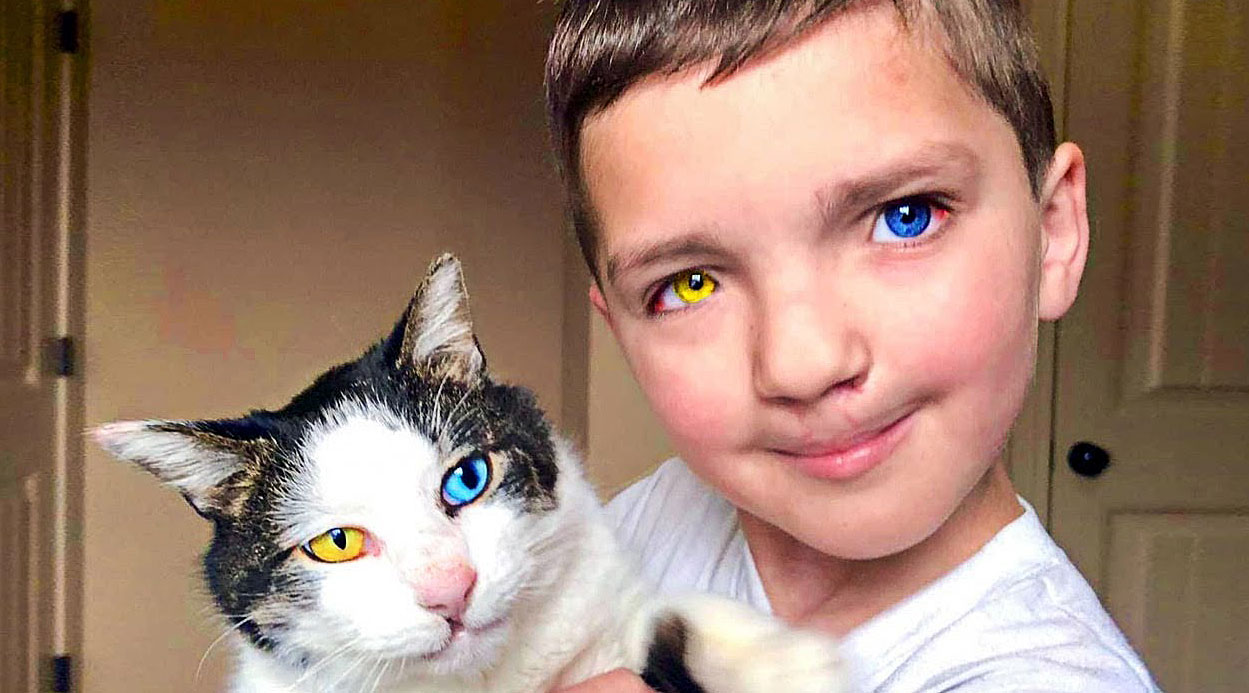 This Little Boy With a Very Rare Defect and Disorder Found a Cat Who Has His Exact Same Condition!