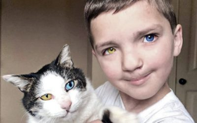 This Little Boy With a Very Rare Defect and Disorder Found a Cat Who Has His Exact Same Condition.