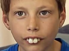 How to get rid of bunny teeth